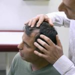 Fue Hair Implantation and Scarring: Things Need to Know